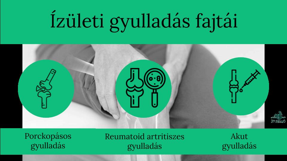 kezelni tudja az ízületek ízületi gyulladásait fájdalmak a csípőízületben