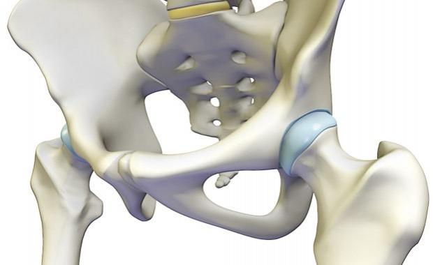 csípőízület ligamentumainak sérülése