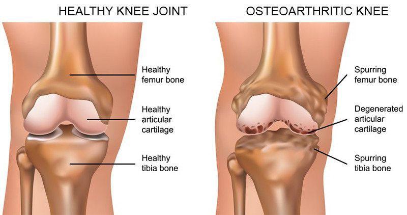 térdízületi fájdalom a protézisek után)