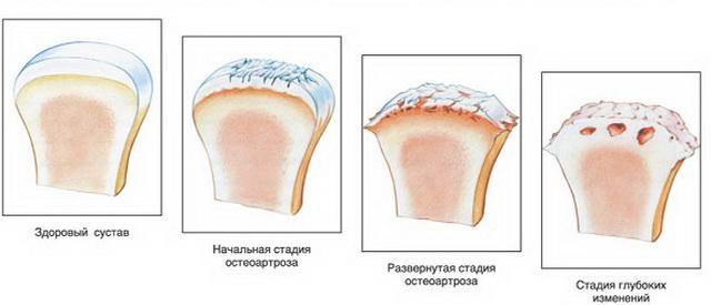 artrózis a térdízület kezelésének 3 stádiuma)