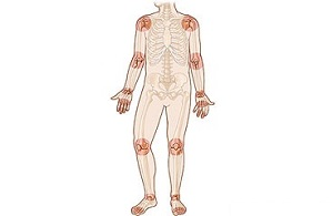 masszázs az ízületek lábainak fájdalmaként a jobb kéz duzzanata az ízületen