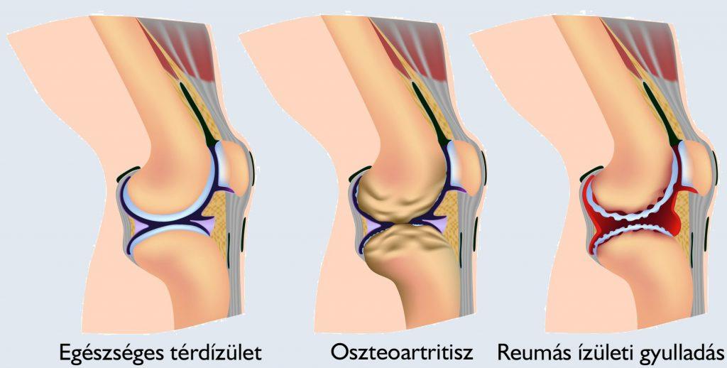 térdízület osteonecrosis kezelése)