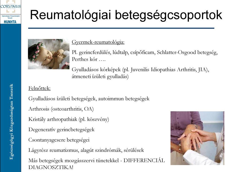 ízületi betegségkatalógus