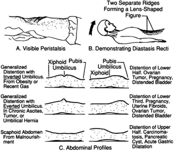 scaphoid abdomen meaning