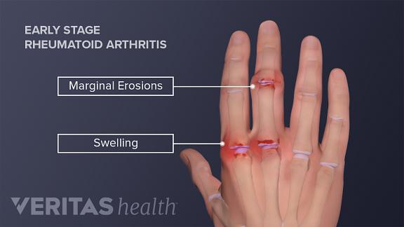 rheumatoid arthritis bursitis a könyökízületben)