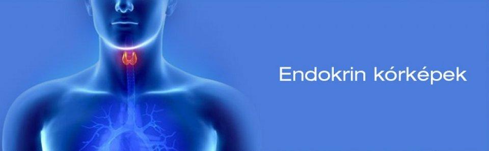 ízületi fájdalom endokrin betegségekkel