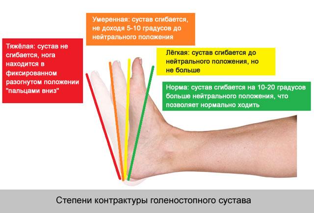 gonarthrosis a térdízület kezelésének 3 stádiuma