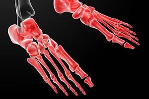csepeg a csípőízület osteoarthritisére