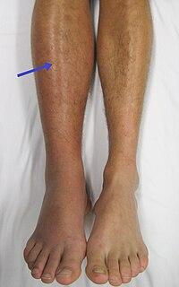 fájdalom a bal láb medenceízületében csípő izom fájdalom
