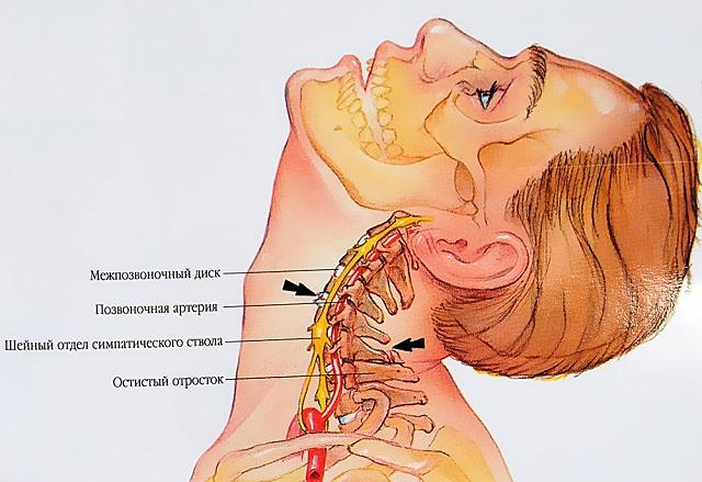 fájdalom a karok és a lábak nyaki ízületeiben)
