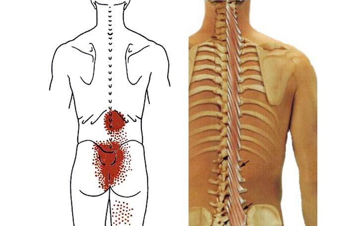 artrózis az ágyéki régió kezelésében)