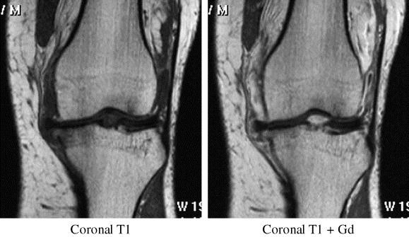 A csont szerepe a térdízületi gyulladásban (OA)
