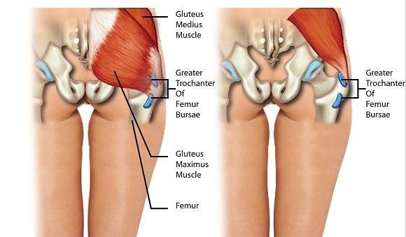 csípőfájás bursitis