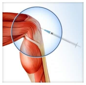 térdízületi kezelés injekció