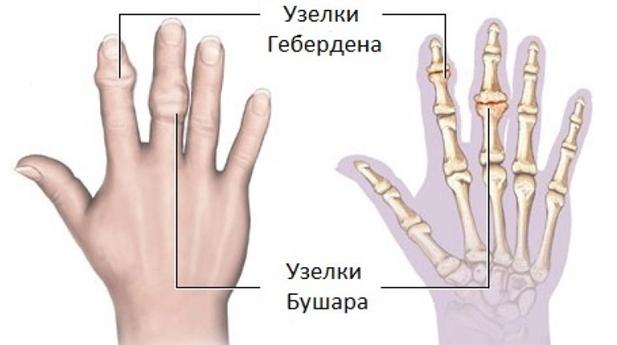 a mutatóujj ízületi gyulladása)