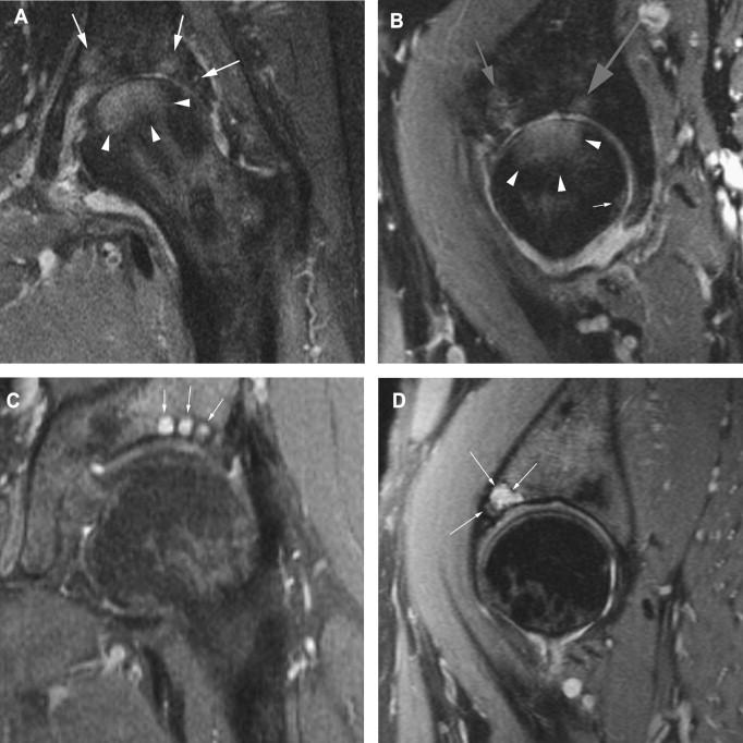 osteoarthritis radiology hip