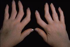 nekem van rheumatoid arthritis, mint hogy kezeljem)