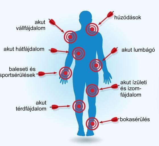 ízületek és izmok reumatikus gyógyszerei)