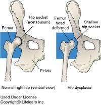 ortopédia csípő dysplasia kezelés