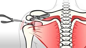 deformáló ízületi lézeres kezelés az artrózis kezelésére szolgáló orvosi előírások