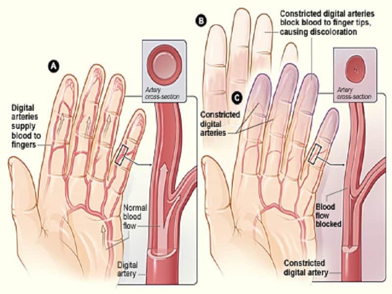 hüvelykujj ízületi fájdalmak