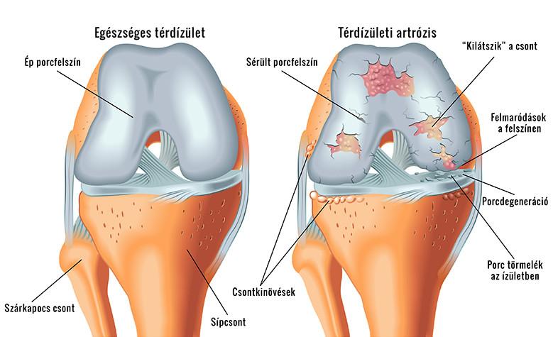 a térd tüneteinek akut artrózisa)