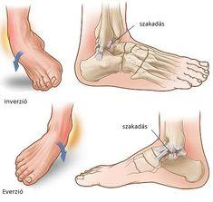 láb boka sérülések