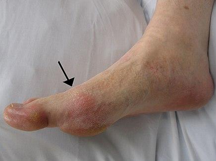a láb interfalangeális ízületeinek ízületi gyulladása