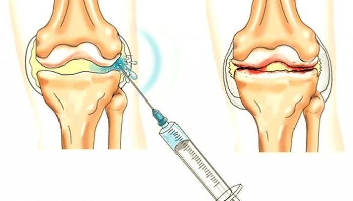 a térdízület kezelésének deformált osteoarthrosis-ja