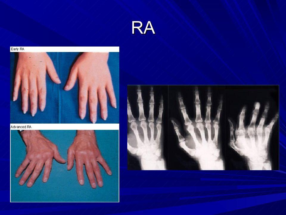 a könyökízület reumatoid artritisz kezelése)
