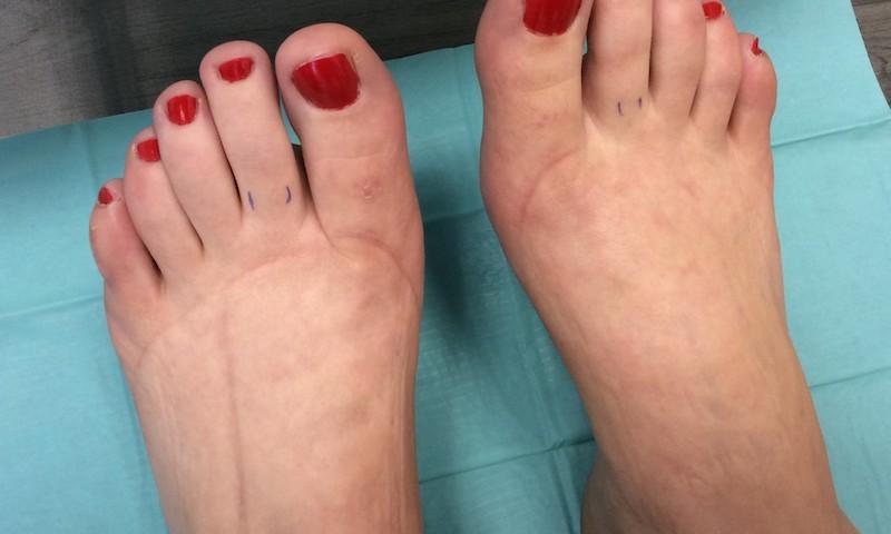artrózisos fokú kezelés