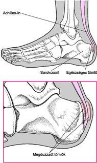 a lábujjak ízületeinek károsodása