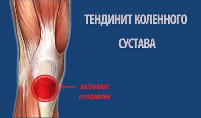 térd liba bursitisének kezelése)