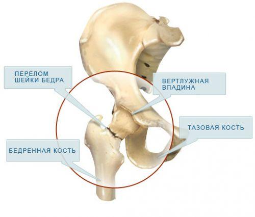 az acetabulum csípőízülete fáj a könyök ízülete fájni kezdett