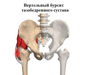 Csípőízület: fájdalom, kezelés, egyidejű betegségek