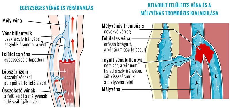 ízületi gyulladás a nagy toekon