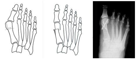 Hogyan lehet felismerni és leküzdeni a láb osteoarthritisét? - Arthritis July