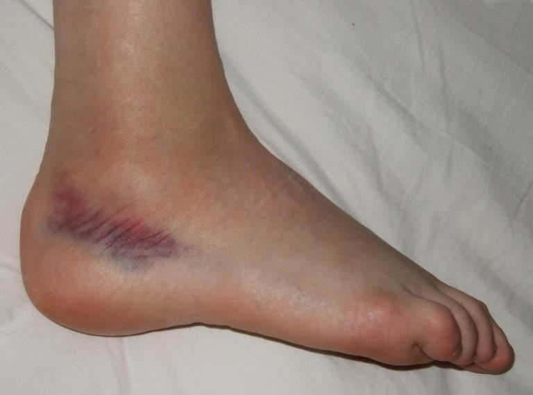 bokakötések repedése tünetek és kezelés a csípőízület első fokú artrózisa
