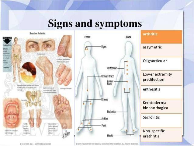 yersinia és ízületi betegség)