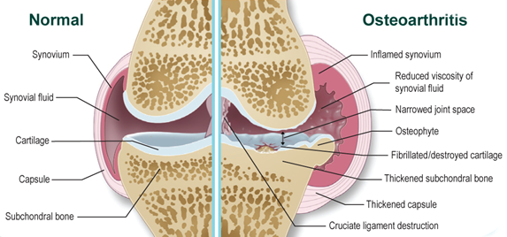 mesterséges szinoviális folyadékkészítmények a csípőízülethez