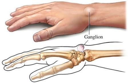 a könyökízület fájdalma az ujjakat érinti)