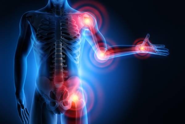 ízületi fájdalom okozza a testet tabletták fáj az ízületek