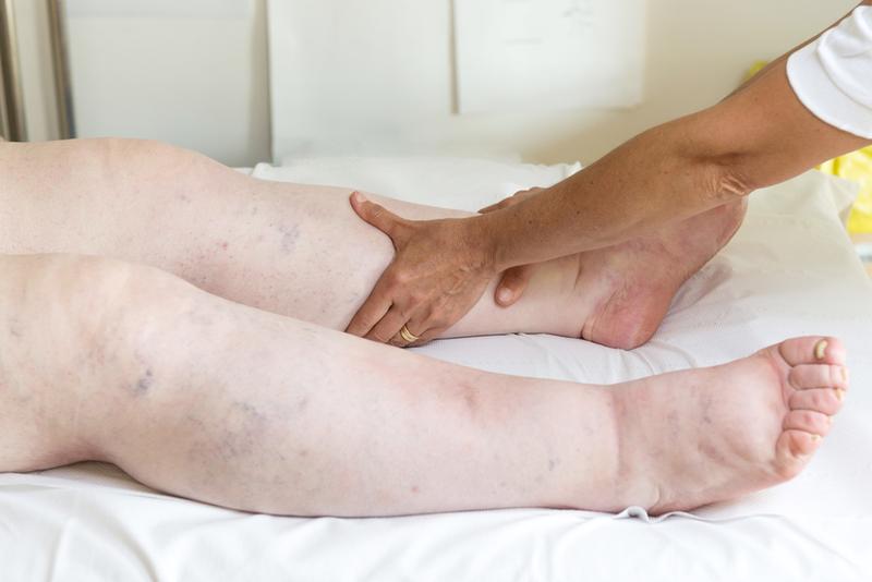 duzzadt és fájdalmas láb)
