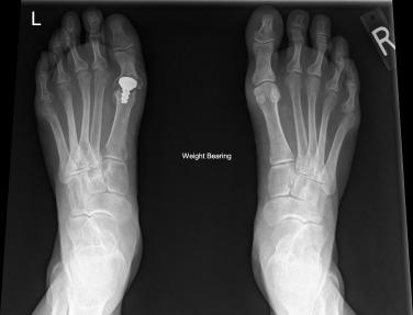 1st metatarsophalangeal joint osteoarthritis icd 10
