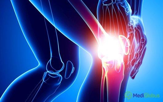 artrosis coxarthrosis kezelése