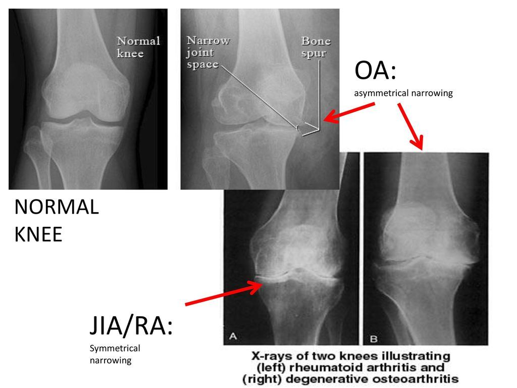 rheumatoid arthritis radiology knee)