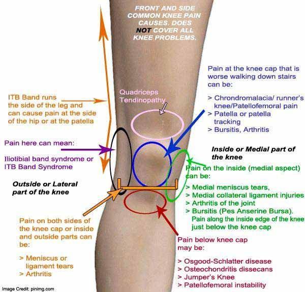 Chondromalacia patella és térd: fok és kezelés - Nyáktömlőgyulladás July