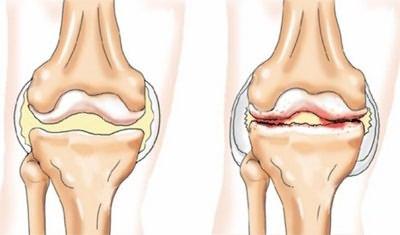 deformáló artrózis a térdízület 2-3 fokos)