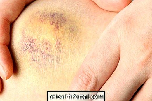 a térd artrózisának súlyosbodása)