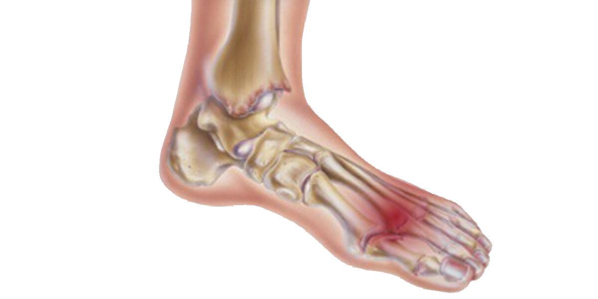 fájdalom a lábak ízületeiben éjjel